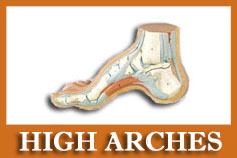 high arched feet